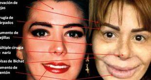 el doctor Gustavo González Zaldívar, especialista en Cirugía Plástica y Reconstructiva, compartió este análisis del rostro de Alejandra Guzmán